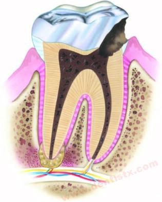 国际通行的牙齿治疗方法----根管治疗